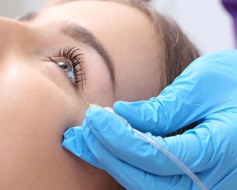 Jean-Baptiste-Klinika-Spa-Kielce-zabieg-dla-kobiet-Karboksyterapia-okolicy-oka-Kielce