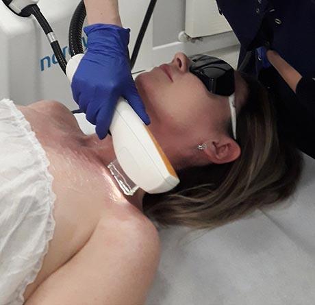 Laserowe usuwanie trądziku różowatego