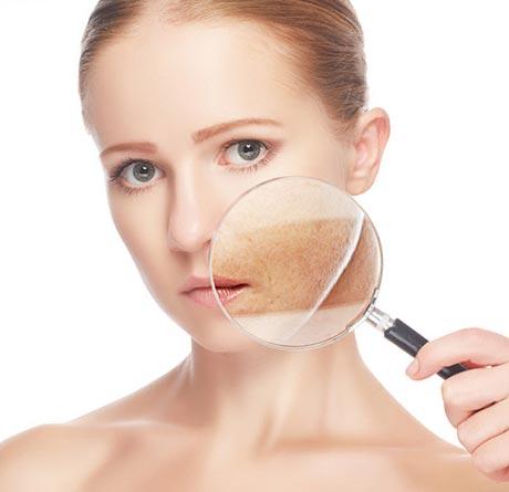 Laserowe usuwanie przebarwień skóry Nordlys by Ellipse