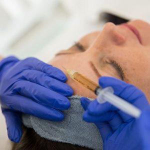 Mezoterapia igłowa – twarz, szyja, dekolt