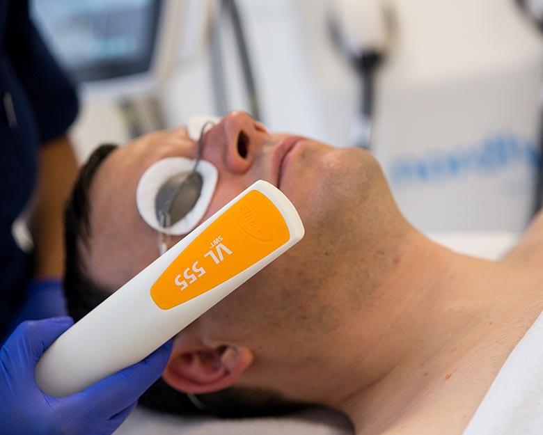Laserowe usuwanie przebarwień skóry u mężczyzn – laser Nordlys by Ellipse