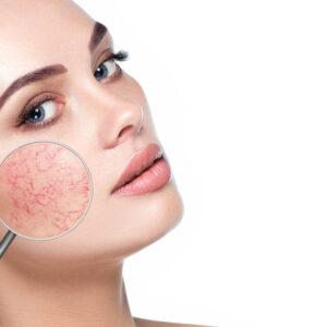 Jak pielęgnować skórę wrażliwą i naczyniową?