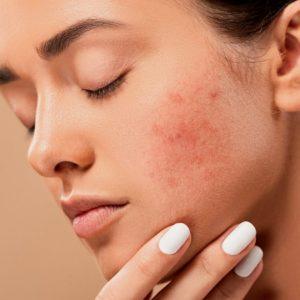 Pielęgnacja skóry trądzikowej